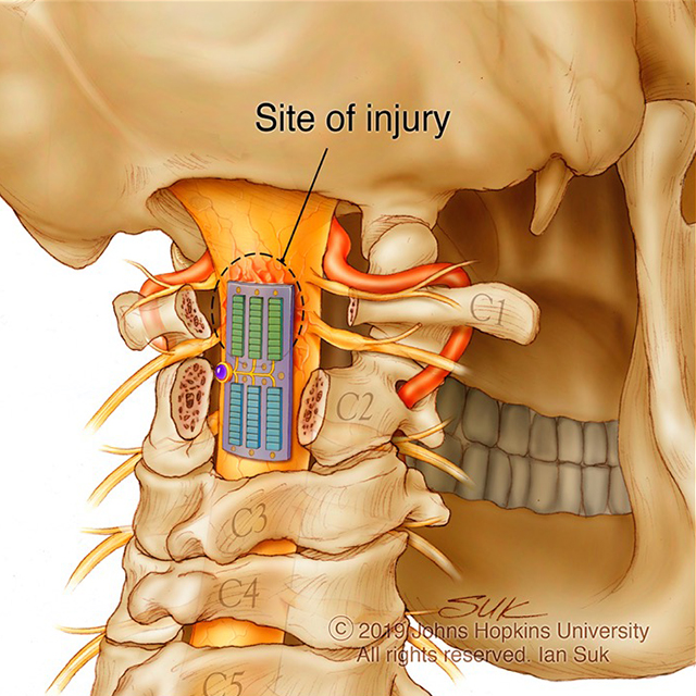 An illustration shows the concept for an implant for spinal cord injury.