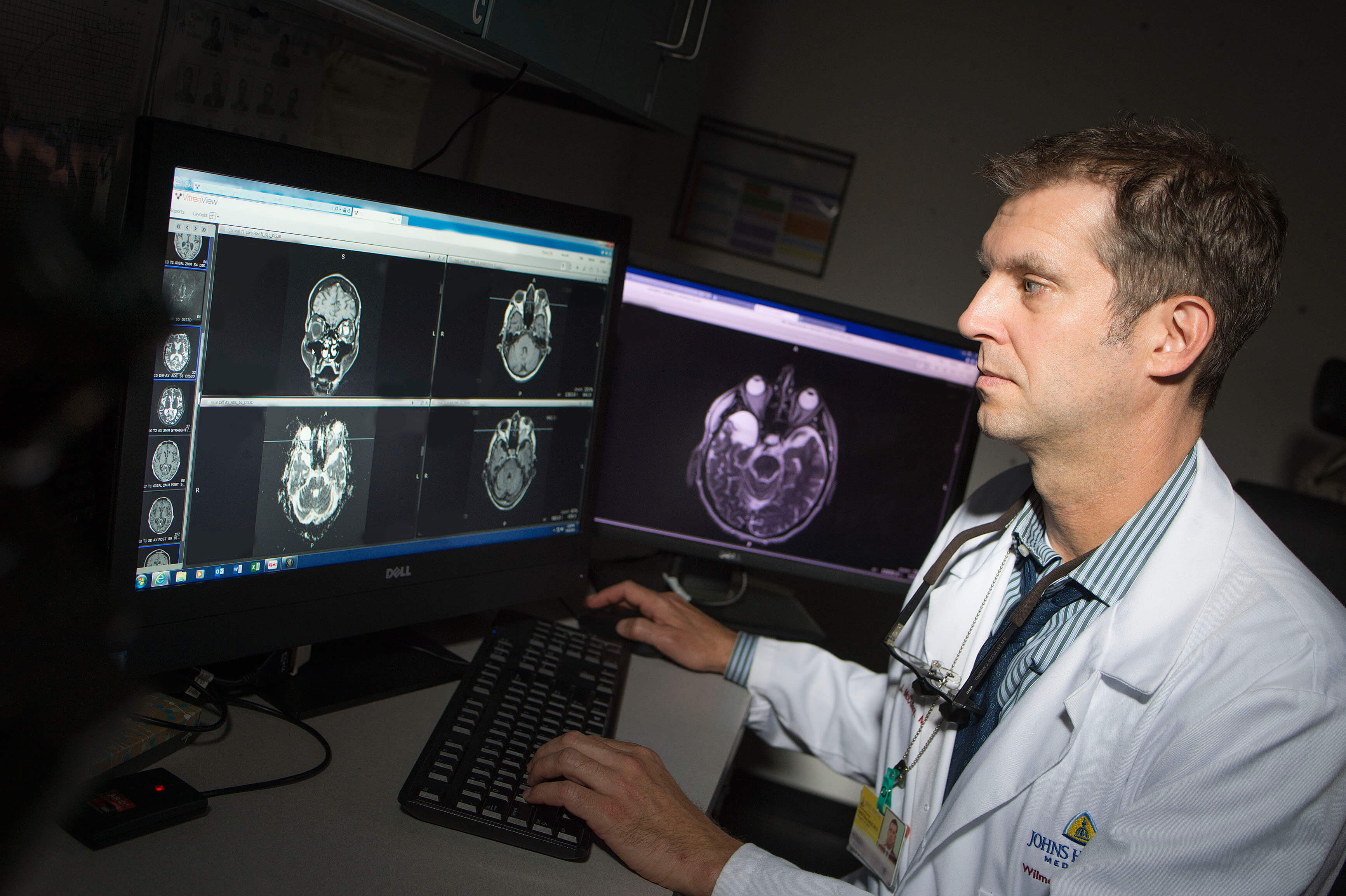 Dr. Timothy McCulley examines MRI scans