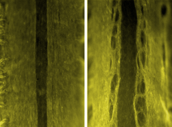 defective axon wiring in spinal cord
