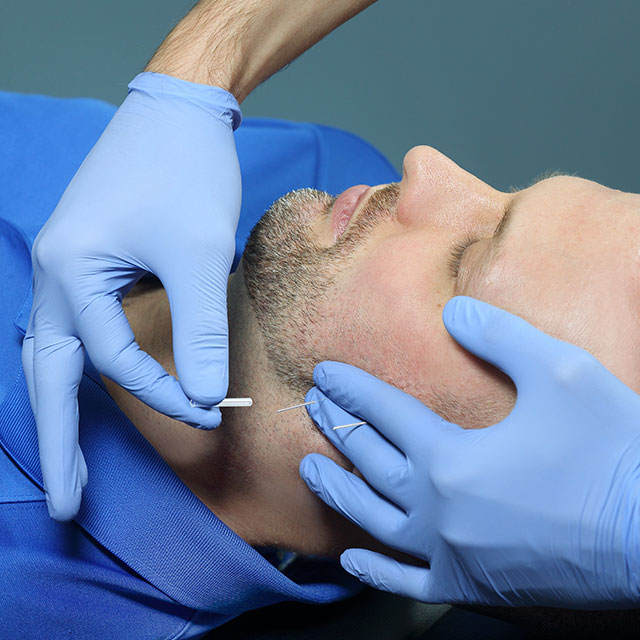 A therapist inserting a needle into a man's neck