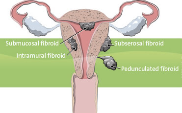 Illustration of a female pelvis with fibroids