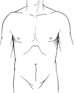 Diagram of the abdomen, showing a vertical incision from the open procedure
