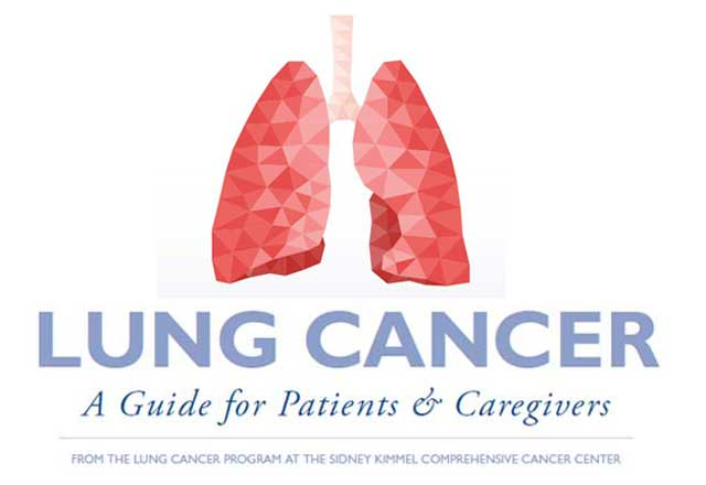 lung cancer ebook
