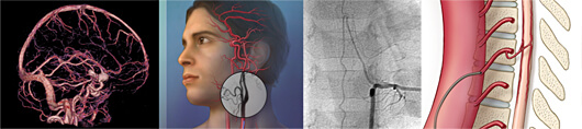 A banner depicting four imagesin a row: (1) a scan of the venous system of the brain from the side, (2) an illustration of a man with his arteries visible in his brain, (3) an x-ray image of a spinal angiogram, and (4) an illustration of a spinal angiogram with a catheter in the aorta of a patient.