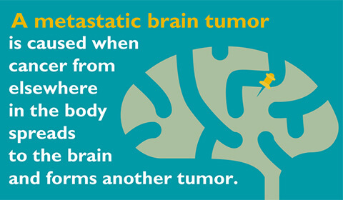 A metastatic brain tumor is caused when cancer from elsewhere in the body spreads to the brain and forms another tumor.