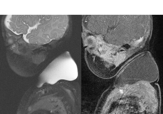 This is a black and white, sagittal T2 and T1-post gadolinium weighted images show a T2 hyperintense, unilocular, peripherally enhancing left neck mass consistent with a macrocystic lymphatic malformation.