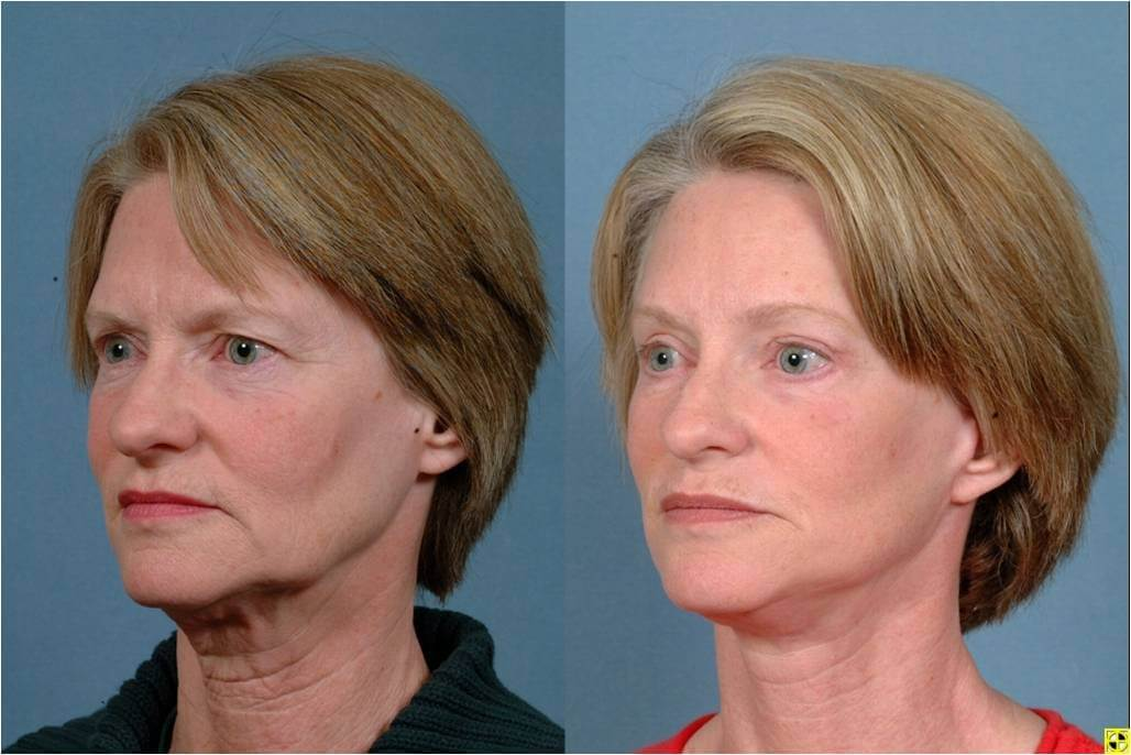 Dr. Patrick Byrne Patient- Treatment: facelift, neck liposuction, upper and lower eyelid blepharoplasty, endoscopic browlift, and minimally invasive injections to perioral (tissues around the mouth) region.