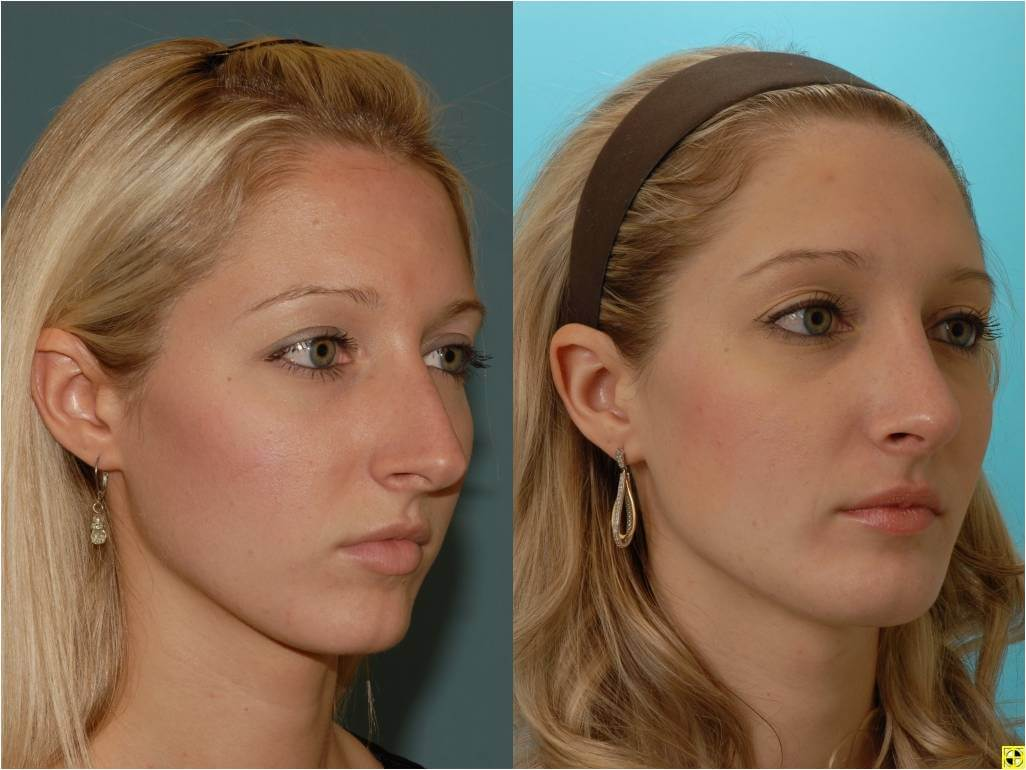 Dr. Patrick Byrne Patient - Treatment: rhinoplasty with a dorsal hump reduction and refinement of the nasal tip.