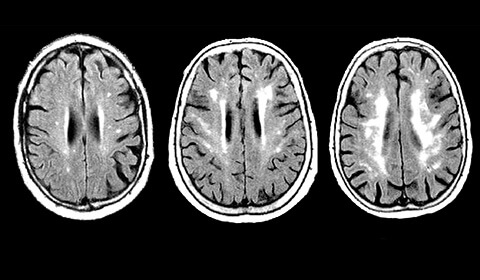 Three brain scans, showing an increase in white matter damage.