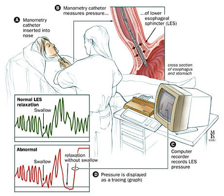 Patient set-up and technique of manometry.