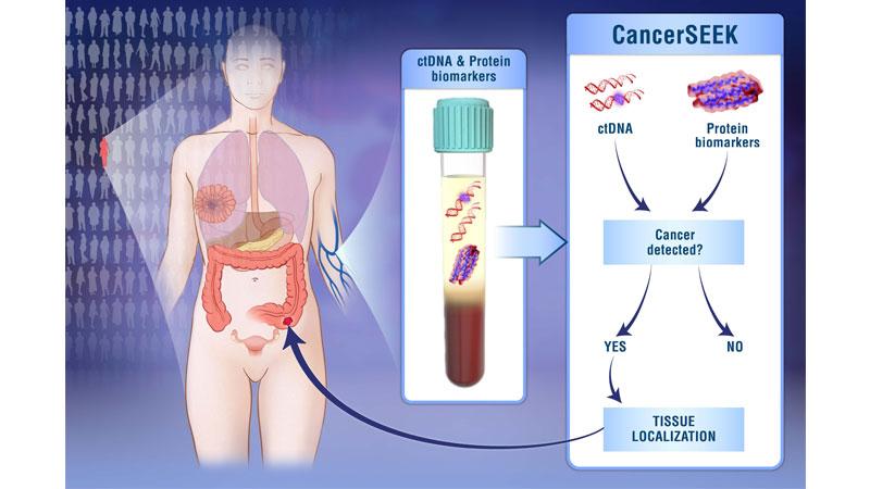 se puede detectar el cancer en la sangre
