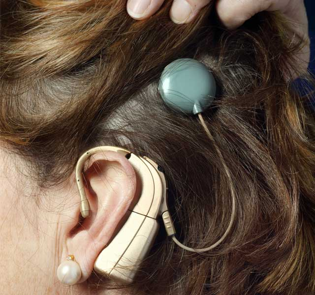 an overview of cochlear implants A cochlear implant is a small electronic device that can help make sound if you have a certain type of severe hearing loss in both ears the implant does the job of the damaged or absent nerve cells that in a normal ear make it possible to hear.