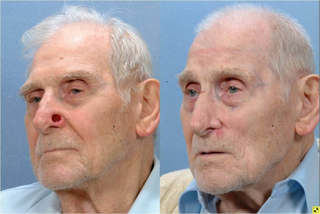 Dr. Patrick Byrne Patient - Treatment: Nasal ala defect repaired with a melolabial flap.