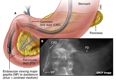 A: Normal biliary and pancreatic ducts during an ERCP; B: ERCP image.
