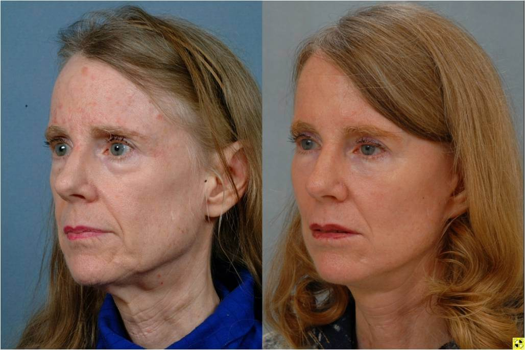 Dr. Patrick Byrne Patient - Treatment: lower face and necklift, minimally invasive injections to her perioral (tissues around the mouth) region.