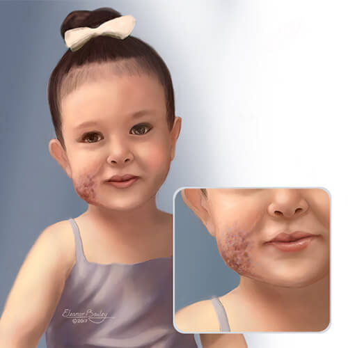 Child with a venous malformation on her cheek