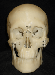 A skull with pins for reconstructive surgery