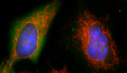 Healthy human HeLa cells