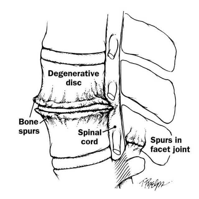 Degenerative Disc Disease Treatment Johns Hopkins