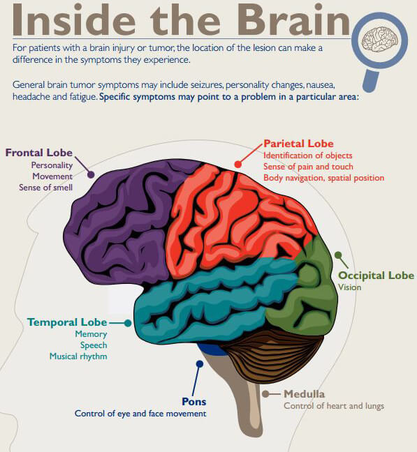 Brain tumor infographic. Click to view.