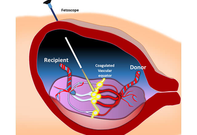 Fetoscopic Laser Surgery | Johns Hopkins Center for Fetal