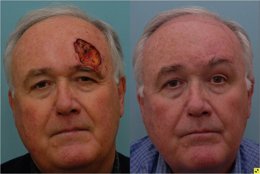 Dr. Patrick Byrne Patient - Treatment: Large defect of the forehead repaired with local flaps.