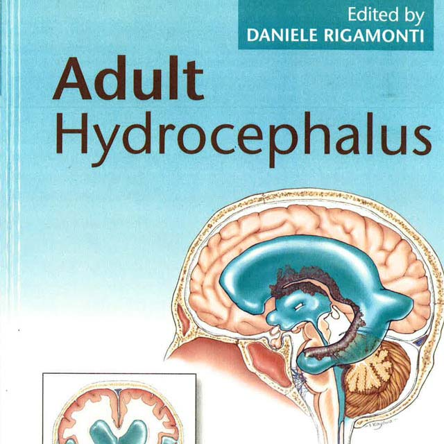 Adult Hydrocephalus Book Cover