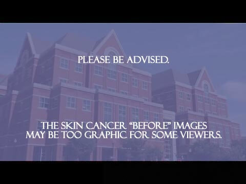 Please be advised. The skin cancer images may be too graphic for some viewers.