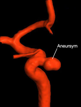 3D reconstruction of a paraophthalmic aneurysm. The arteries are shown in red on a black background.