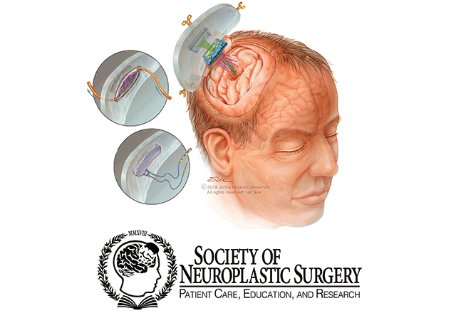 Model of a cranial implant and society of neuroplastic surgery logo