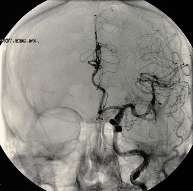 angiogram of a brain aneurysm