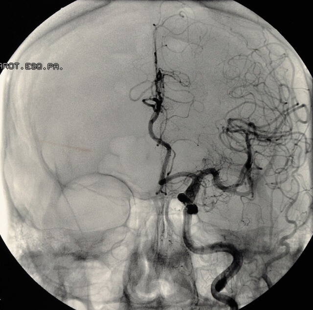 Aneurysm as seen in a brain scan
