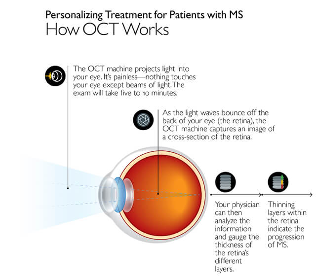 Infographic: Personalizing treatment for patients with MS: How O.C.T. works. The O.C.T. machine projects light into your eye. It is painless; nothing touches your eye except beams of light. The exam will take five to 10 minutes. As the light waves bounce off the back of your eye (the retina), the O.C.T. machine captures an image of a cross-section of the retina. Your physician can then analyze the information ana gauge the thickness of the retina's different layers. Thinning layers within the retina indicate the progression of M.S.