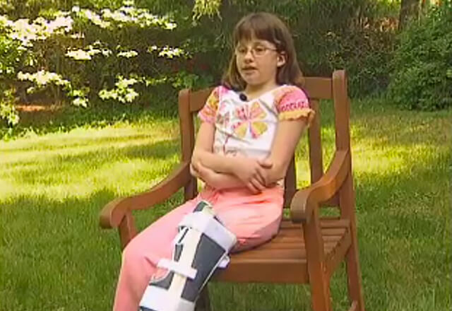 Natalie sitting in a chair with brace on one leg