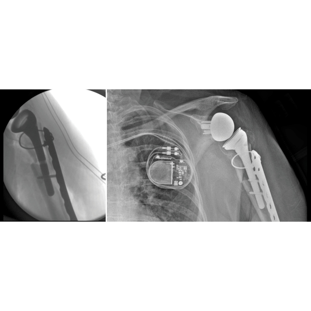 The X-ray on the left shows a patient's failed shoulder implant. The one on the right shows the revision with the new prosthesis and a plate.