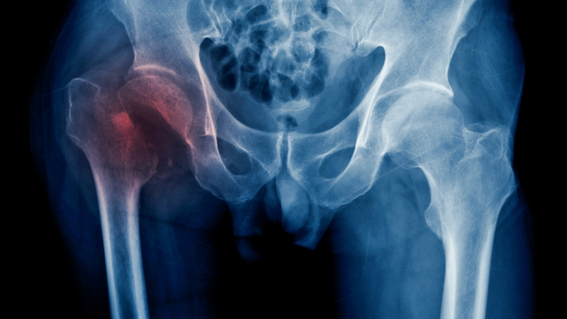 Hip fractures may be a sign of Alzheimer's for older people