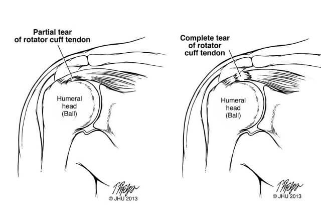 Torn tendon