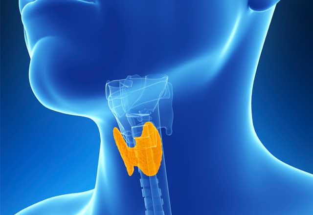 A Second Opinion Thwarts Spreading Thyroid Tumor