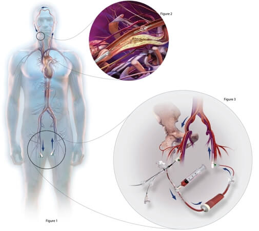 Endoscopic approach to carotid arteries