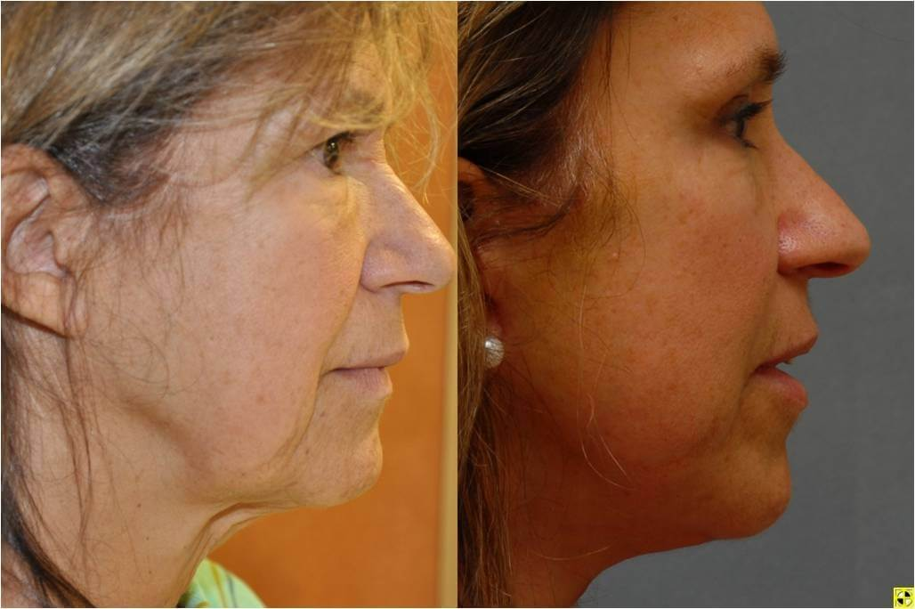 Dr. Patrick Byrne Patient - Treatment: lower face and necklift, endoscopic browlift and upper eyelid blepharoplasty.