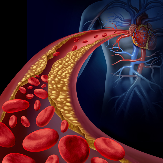 An illustration shows a clogged artery.