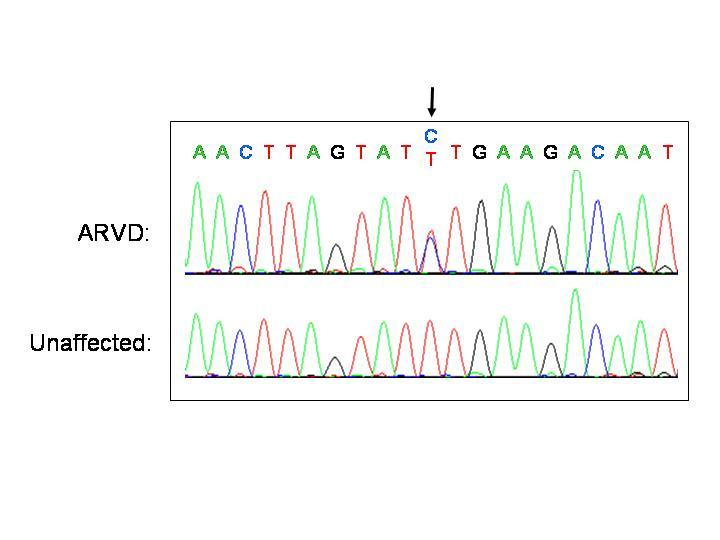 Chromatogram DNA analysis shows with arrow where m