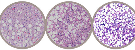 Wilson's disease, left, bears a strong resemblance to alcoholic, center, and nonalcoholic fatty liver disease, complicating diagnosis.