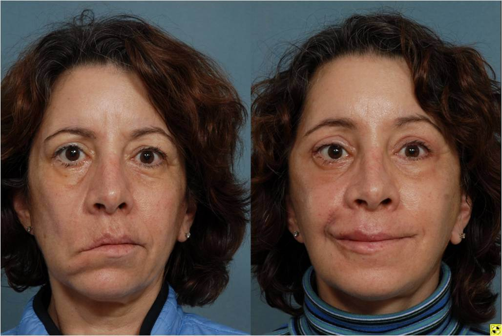 Nerve damage after facial cosmetic surgery