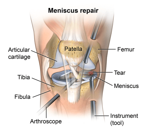 Diagram showing how meniscus is repaired using an arthroscope