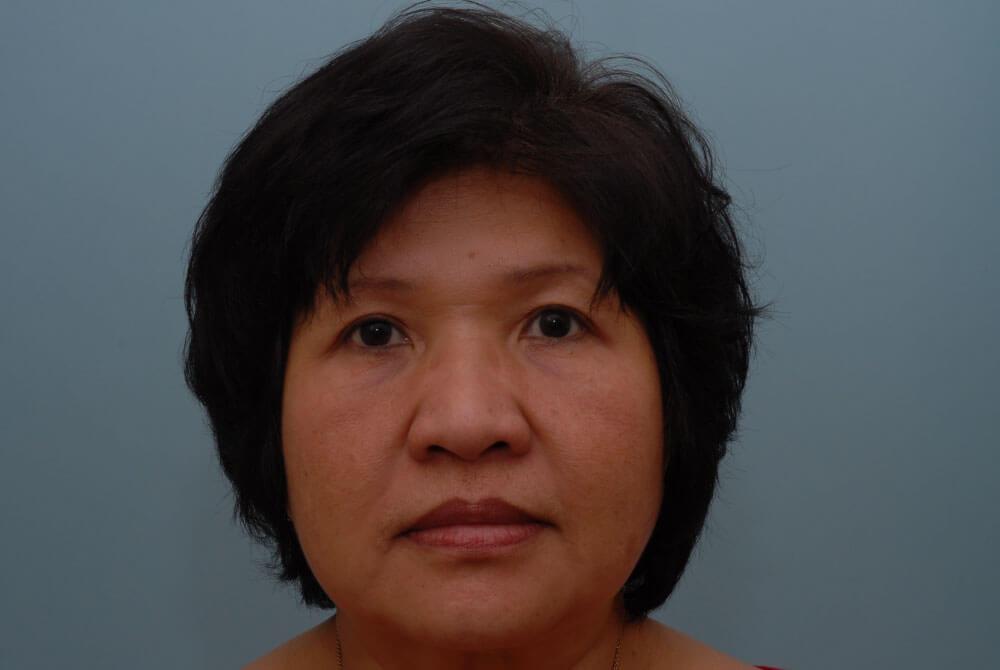 Eyelid Lift | Johns Hopkins Facial Plastic and