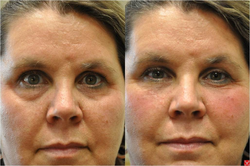 Bellafill Injections  Is This Filler For You Cost