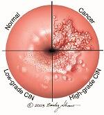 Stages of Cervical Dysplasia
