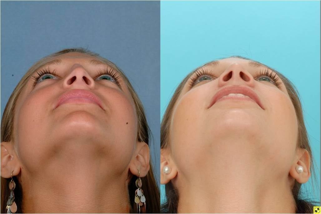 Dr. Patrick Byrne Patient - Treatment: rhinoplasty to treat a twist and a dorsal hump reduction.