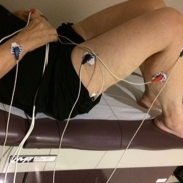 A photo shows electrodes attached to a person.